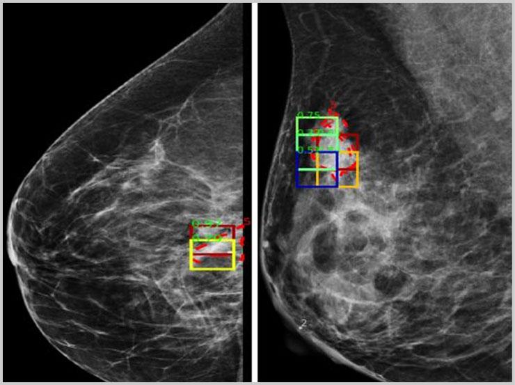 Mammography dataset creation