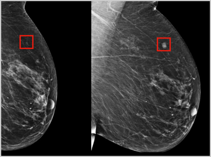 AI model development for breast cancer treatment and outcome management